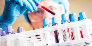 New Therapy for Aggressive Blood Cancer Discovered