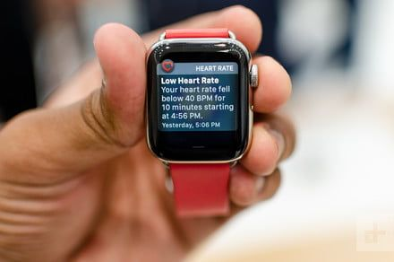 How beneficial is ECG in the new Apple Watch? We asked an expert