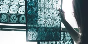 Alzheimer's Development, Progression Linked to Iron Chemistry in the Brain