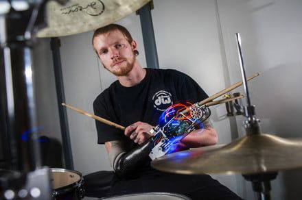 You can help a cyborg drummer get a new, improved robot arm so he can tour
