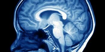 Neuroscientists Map Brain's Response to Cold Touch