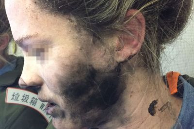 Woman was reportedly burned by Beats headphones, Apple blames 'third-party' AAA batteries