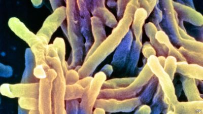 A new antibiotic for drug-resistant tuberculosis