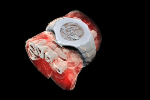 These 3D X-rays are spectacular and really gross